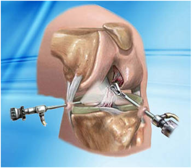 artroscopia puerto vallarta 3